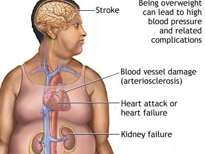 Being overweight and the risk of heart disease & stroke